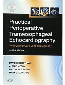Practical Perioperative Transesophageal Echocardiography: Text With Dvd Rom by Amazon
