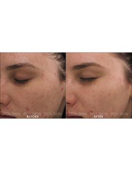 The Acne Control Regimen (4 Piece) by Pca Skin