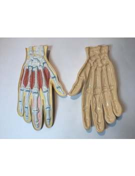 Latex Anotomical Hand Medical Teaching Aid C1960s. Creepy Specimen Hand With Diseases. Retro Medical/Science/Biology Curios. Haloweeen Gift. by Etsy